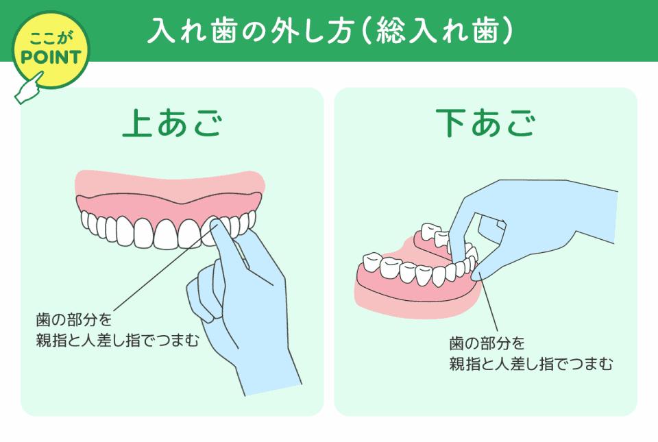 イラスト:入れ歯の外し方(総入れ歯) 【上あご】 歯の部分を 親指と人差し指でつまむ 【下あご】 歯の部分を 親指と人差し指でつまむ