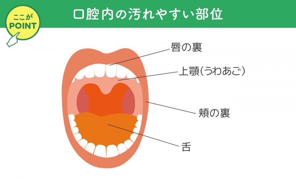 入れ歯を外したあとの口腔内の汚れやすい部位