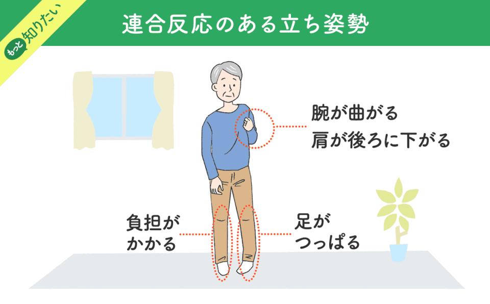 【連合反応のある立ち姿勢】負担がかかる。足がつっぱる。腕が曲がる、肩が後ろに下がる