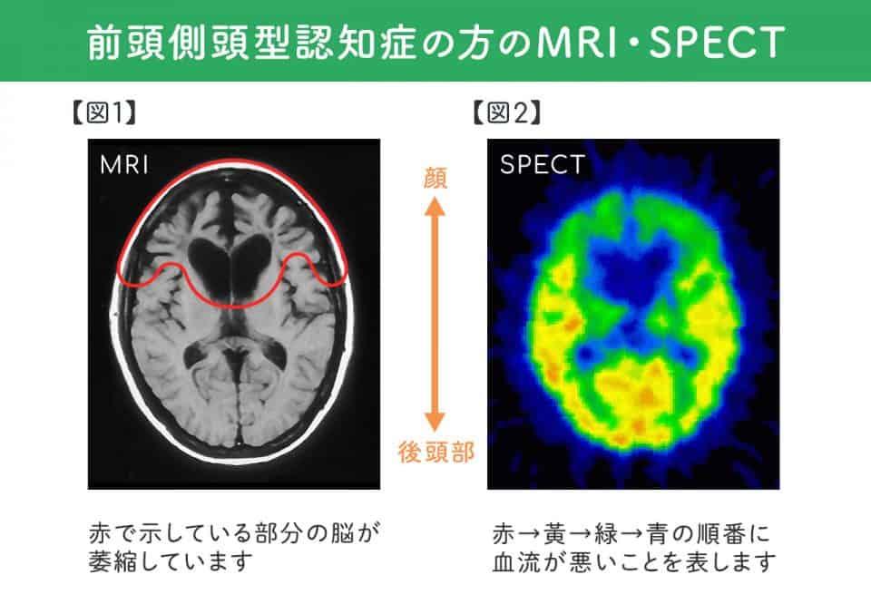 前頭側頭型認知症の本能の赴くままの行動:本人が「こうしたい」と決める→行動の抑制がきかなくなる→静止されると暴力につながる  前頭側頭型認知症の型のMRI・SPECT:【図1:MRI】赤で示している顔側の脳が萎縮しています。【図2:SPECT】赤→黄→緑→青の順番に血流が悪いことを示します。