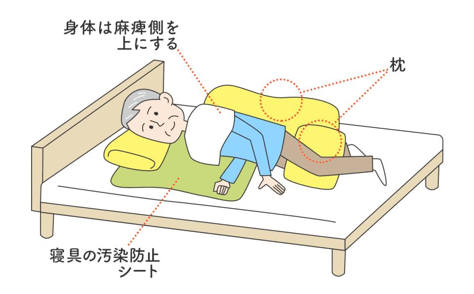 口腔ケア・側臥位の場合(片麻痺の人など):身体は麻痺側を上にする。寝具の汚染防止シート・足の間や背中に枕を挟む