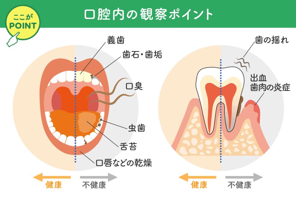 口腔内の観察ポイント:義歯、歯石・歯垢、口臭、虫歯、舌苔、口唇などの感想、葉の揺れ、出血・歯肉の炎症