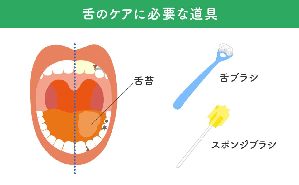 舌のケアに必要な道具:舌ブラシ、スポンジブラシ