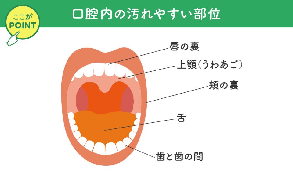 口腔内の汚れやすい部位:唇の裏、上顎、頬の裏、舌、歯と歯の間