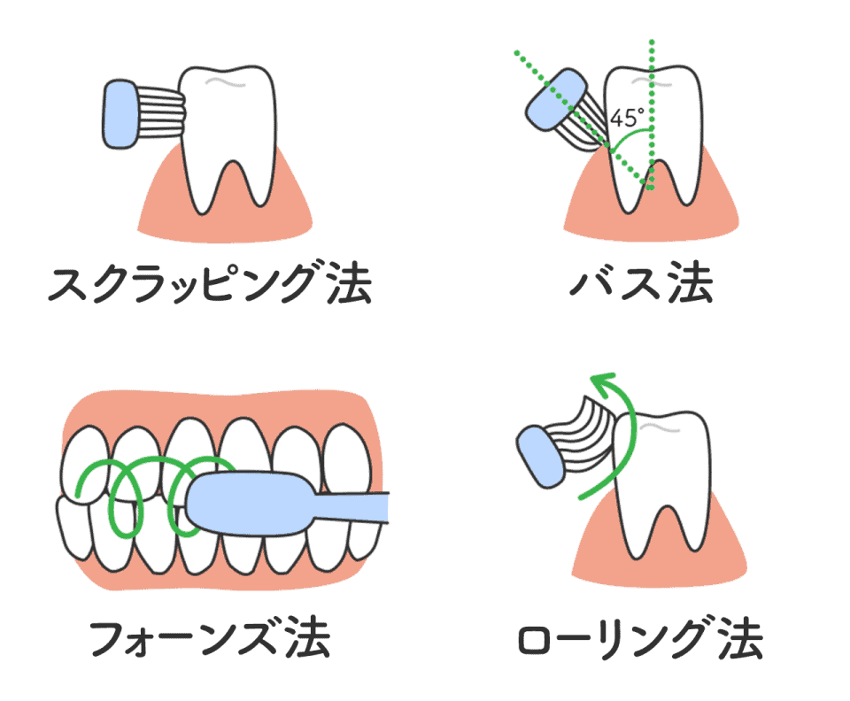 口腔ケア、ブラッシング方法:スクラッピング法・フォーンズ法・バス法・ローリング法