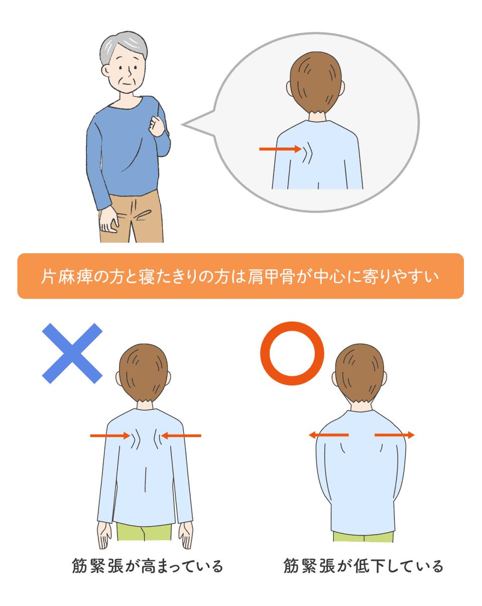 片麻痺の方と寝たきりの方は肩甲骨が中心に寄りやすい