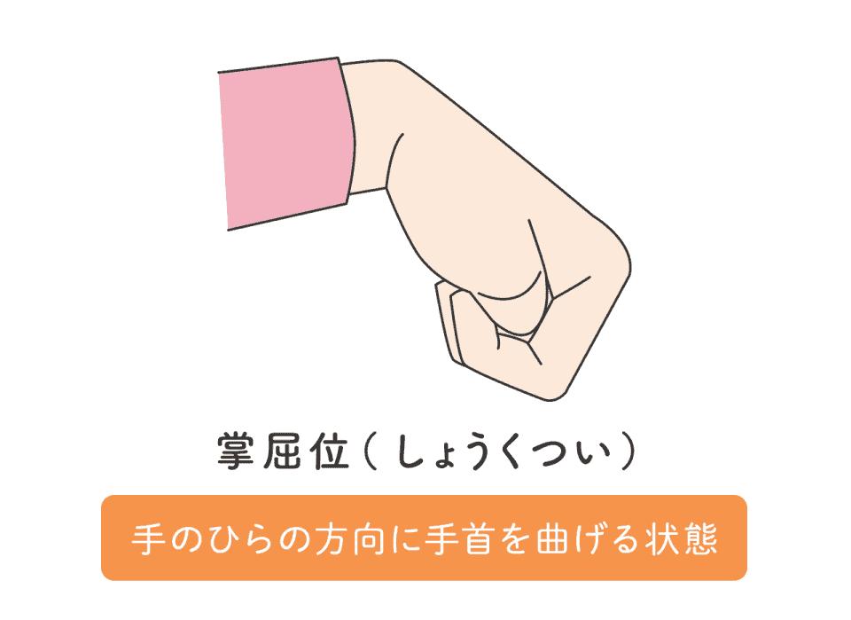 掌屈位(しょうくつい)のイラスト。手のひらの方向に手首を曲げる状態