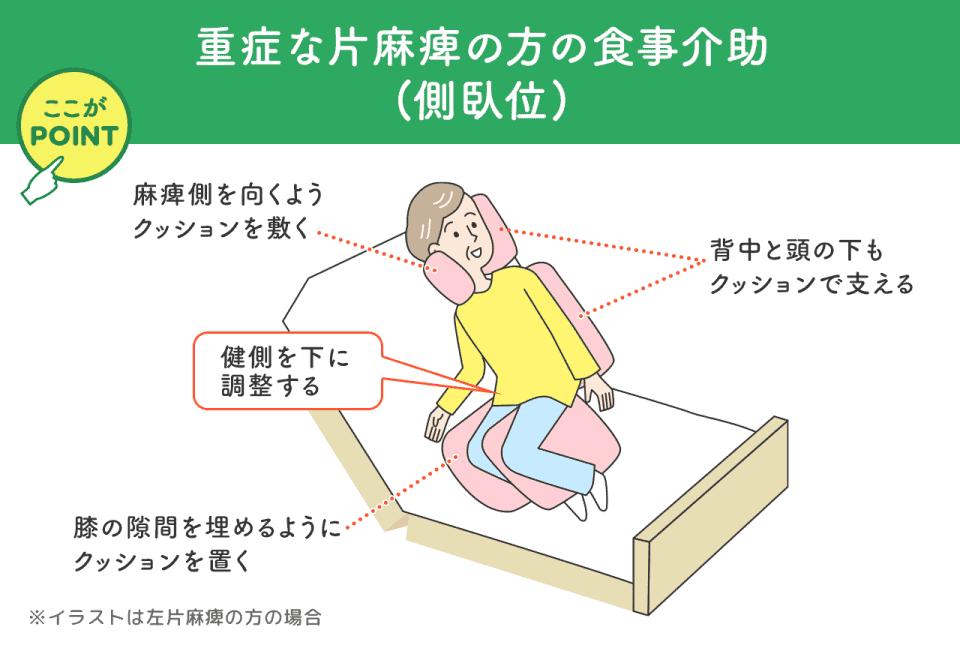 重症な片麻痺の方の食事介助(側臥位) 麻痺側を向くようクッションを敷く 背中と頭の下もクッションで支える 健側を下に調整する 膝の隙間を埋めるようにクッションを置く